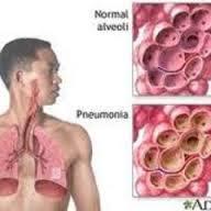 obat infeksi paru-paru herbal yang manjur